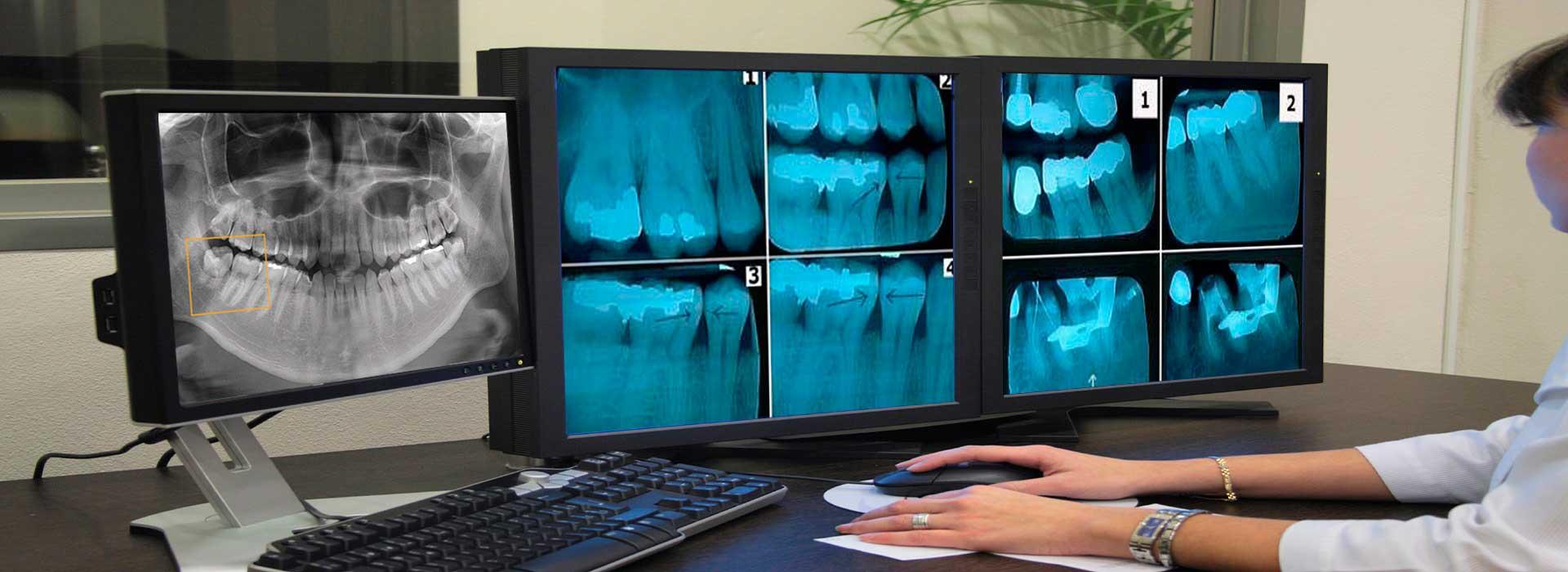 رادیوگرافی دیجیتال دندان